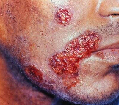 Herpes simplex rash around the mouth picture