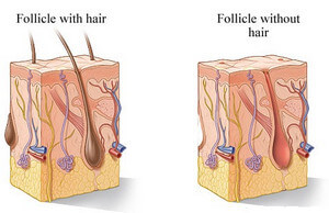 Hair Follicle image