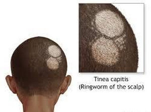 tinea capitis, more commonly known as scalp ringworm image