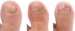 Fungi can also cause toenails to be broken off and detached image