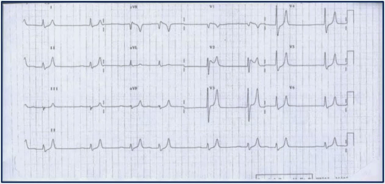 ECG shows hyperkalemia in its early state image