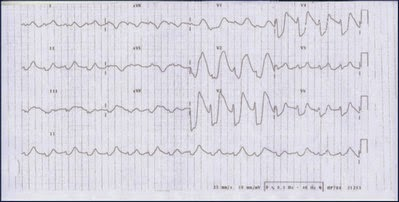 ECG shows hyperkalemia in its late state image