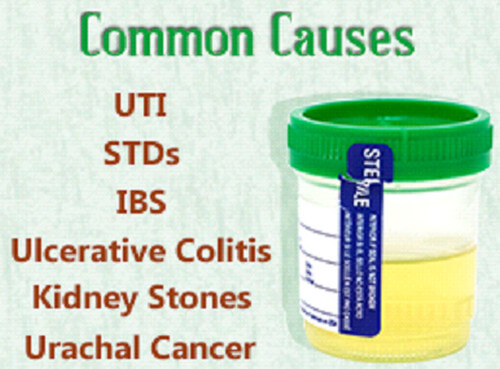 Common Causes of Mucus in Urine picture