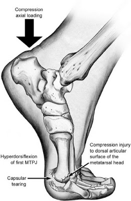 Hyperdorsiflexion of the Great Toe image