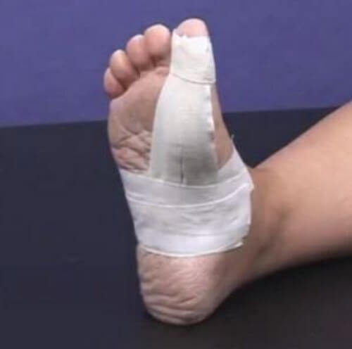 Place the tape around the big toe picture