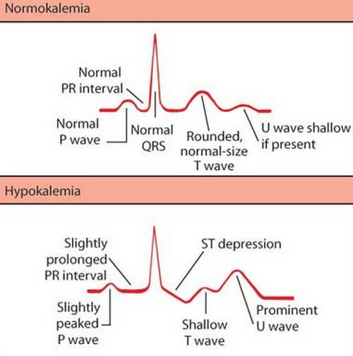 Difference between Normal ECG and Hypokalemia picture