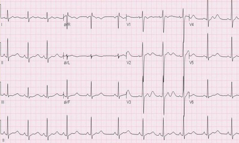 Prominent U waves in Hypokalemia ECG Also check Hyperkalemia ECG image