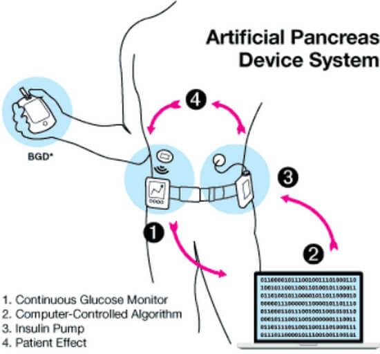 """""""Bionic"""" Artificial Pancreas Device system image"""