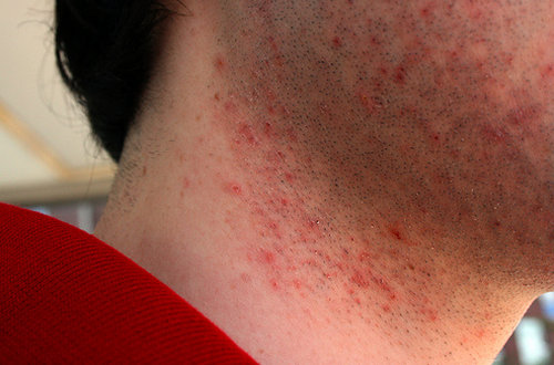 A man with a razor bumps and burns on the face and neck.image