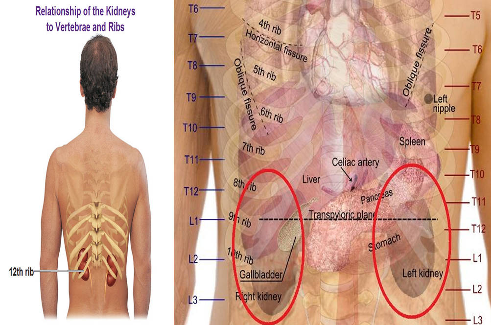 Kidney Pain Location Pictures Symptoms Causes Diagnosis