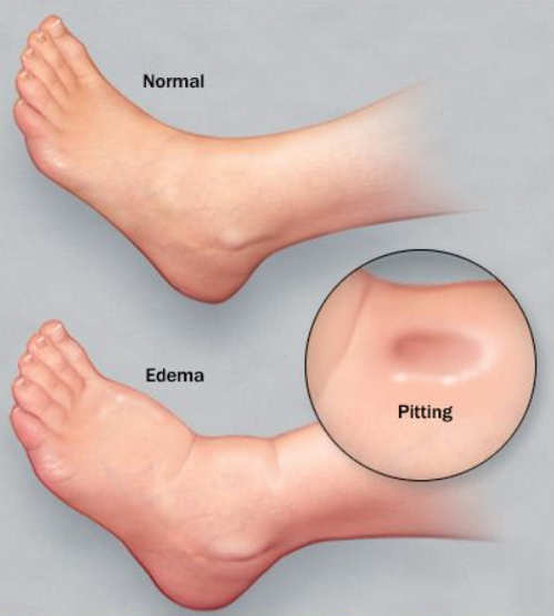 A comparison image of a normal foot and a foot with severe swelling (anasarca).image