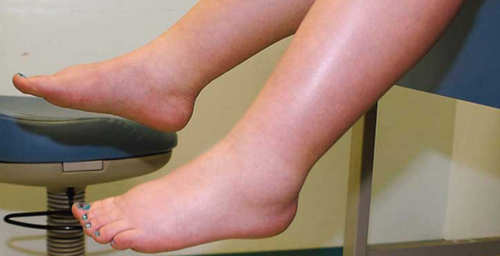 A patient with severe edema (pitting type).image