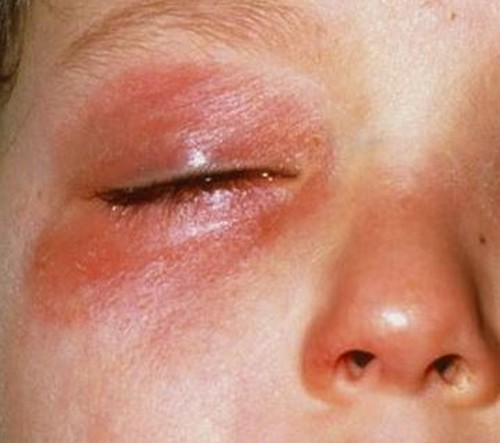 A severe form of rashes under the eyes.image