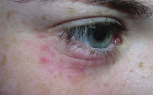 Minor rashes around the eyes as manifested by redness and swelling.photo